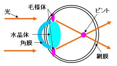 近視・屈折性近視